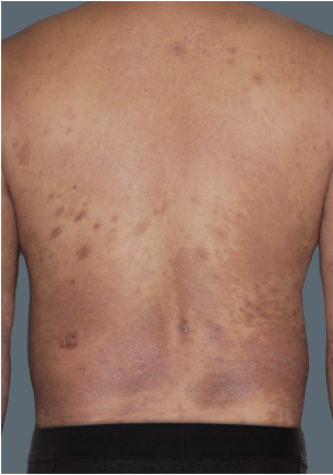 Photos of a patient with plaque psoriasis before and after taking TREMFYA® (guselkumab)
